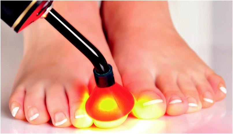 Как лечить онихомикоз ногтей на ногах?, изображение №8