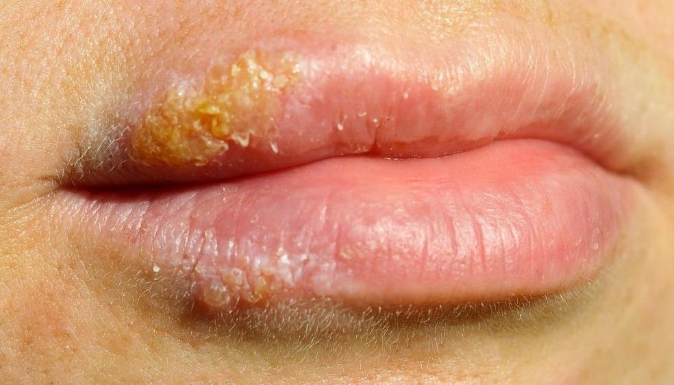 Герпес может передаваться через оральный секс, в рот, половые органы и даже горло.