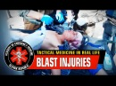 Kid wounded by mortar fire Blast injuries War in Iraq Mosul offensive Graphic content