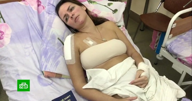 У покалеченной в ДТП вице-мисс «Красы России» кончились деньги на лечение