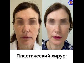 Подтяжка лица, Краснодар. Доктор Ярослав Суходолов