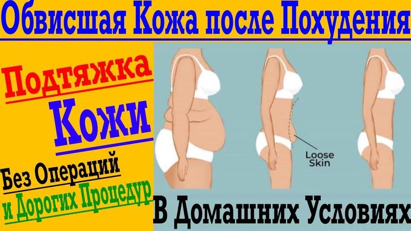 Как подтянуть обвисшую кожу после похудения, родов или возрастных изменений !