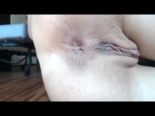 Hard Anal Gape Fisting Redhead Prolapse Slut