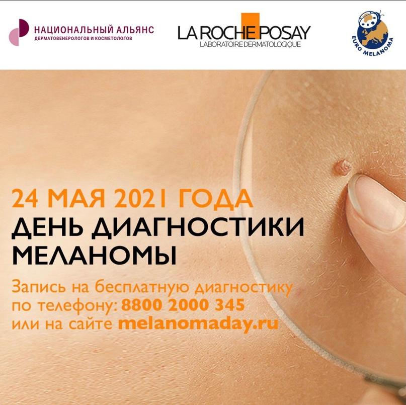 24 мая – День диагностики меланомы в России. Запишитесь на бесплатный прием, изображение №1